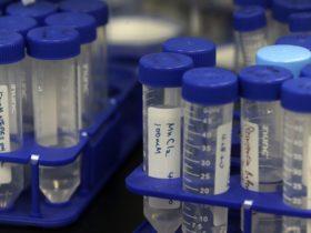 Las vacunas de emergencia COVID-19 tendrán que convencer a un público escéptico